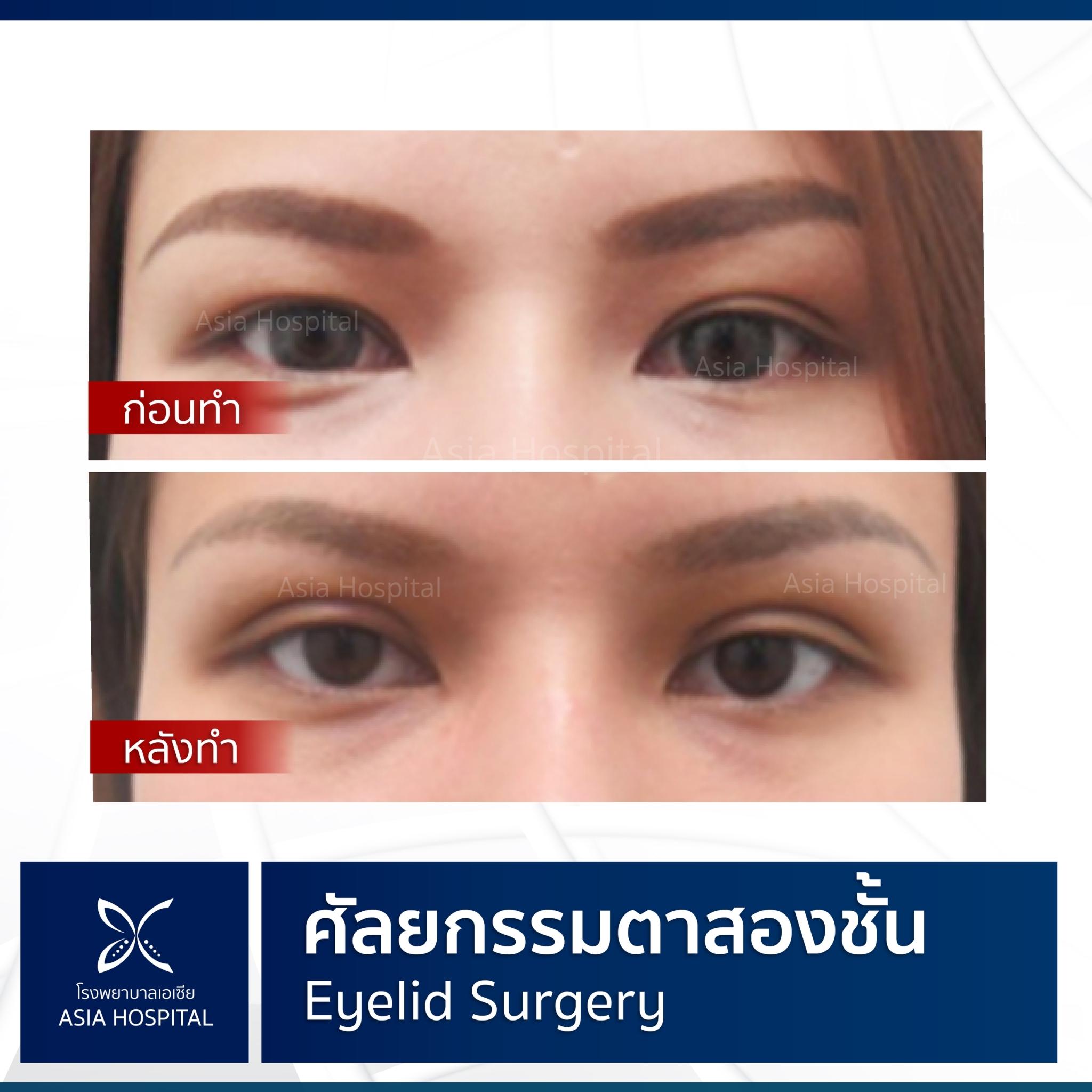รีวิว ศัลยกรรม ตาสองชั้น